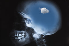 X-Ray Of Human Skull With Sky Stock Photo