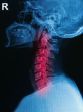 X-ray human skull and spine ( cervical spine ). Show cervical injury stock images