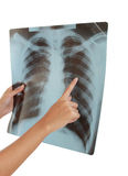 X-ray of a human thorax. Royalty Free Stock Image