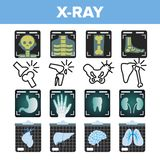 X-ray Icon Set Vector. Radiology Scan. Broken Human Bone. Medical Symbol. Fracture Structure. Health Hospital Medicine royalty free illustration