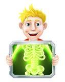 X-Ray Illustration Royalty Free Stock Photography