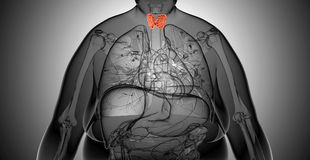 X-ray  illustration of the Overweight woman with  thyroid gland Royalty Free Stock Photos