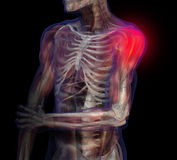 X-ray illustration of shoulder pain. Royalty Free Stock Photos