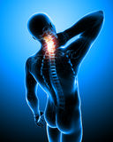 X-ray illustration of spine pain Stock Photos