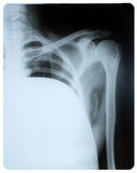 X-ray image. Royalty Free Stock Images