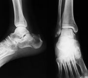 X-ray image of ankle, AP and Lateral view. Stock Photos