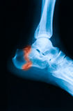 X-ray image of ankle joint, lateral view. X-ray image of ankle, lateral view, shows calcaneus fracture stock image