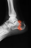 X-ray image of ankle, lateral view. X-ray image of ankle, lateral view, show calcaneus fracture stock images