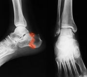 X-ray image of ankle, lateral view. Royalty Free Stock Photography