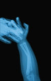 X-ray image of baby forearm, AP view. Royalty Free Stock Photos