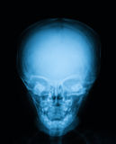 X-ray image of baby skull, front view. Royalty Free Stock Images
