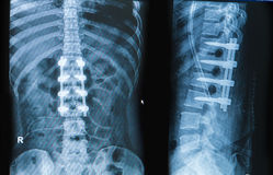 X-ray image of back pain show spinal column with implant fusion Royalty Free Stock Photography