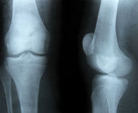X-ray image of bones Stock Image