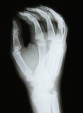 X-ray image of the bones of arm. Bones at x-rays lights stock photo