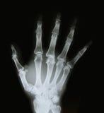 X-ray image of the bones of arm stock photo