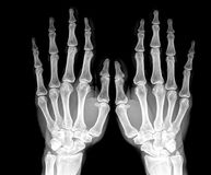 X ray. Image of both human hands Stock Images
