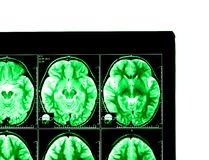 X-ray image of the brain Royalty Free Stock Photo
