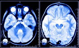X-ray image of the brain Stock Images