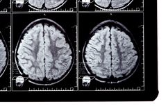 X-ray image of the brain Stock Photos