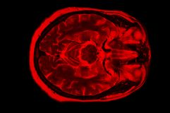 X-ray image of the brain computed tomography royalty free stock image