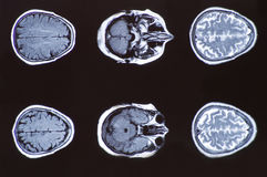 X-ray image of the brain computed tomography Stock Photography