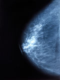 X-ray image of breast mammogram woman Royalty Free Stock Images