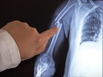 X-ray image of broken arm on monitor of pc royalty free stock image