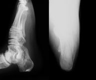 X-ray image of broken calcaneus, AP and axial view. Stock Photos