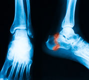 X-ray image of broken calcaneus, AP and lateral view. Show calcaneus fracture royalty free stock photography