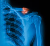 X-ray image of broken clavicle. X-ray image of broken clavicle, AP view royalty free stock photography
