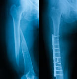 X-ray image of broken femur. Show femur fracture before and after treating by using plate and screws Stock Photos