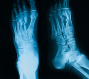 X-ray image of broken foot, AP and lateral view. Royalty Free Stock Image