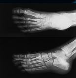 X-ray image of broken foot, AP and lateral view. Show toe and calcaneus fracture royalty free stock images