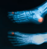 X-ray image of broken foot, AP and lateral view. Stock Photos