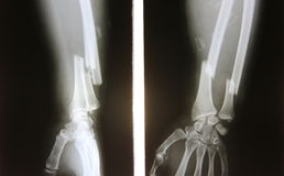 X-ray image of broken forearm, AP and lateral view show fracture. Of ulna and radius bone stock photography