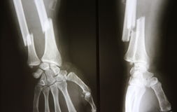 X-ray image of broken forearm, AP and lateral view show fracture. Of ulna and radius bone royalty free stock image