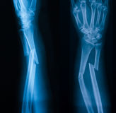X-ray image of broken forearm, AP and loblique view Royalty Free Stock Photo
