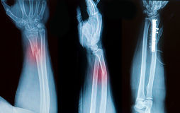 X-ray image of broken forearm bone. Show pre- post operation stock photo