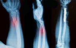 X-ray image of broken forearm bone Stock Photo