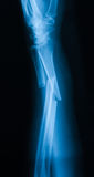 X-ray image of broken forearm,lateral view. X-ray image of broken forearm, lateral view. show ulna and radius fracture royalty free stock photo