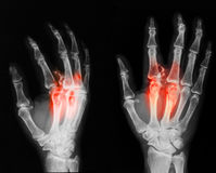 X-ray image of broken hand, AP and oblique view. Stock Photos