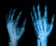 X-ray image of broken hand, AP and oblique view. Royalty Free Stock Image