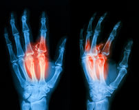 X-ray image of broken hand, lateral view. Royalty Free Stock Photo
