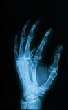 X-ray image of broken hand, oblique view. Stock Images