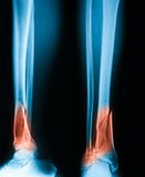 X-ray image of broken leg, AP and lateral view. Royalty Free Stock Image