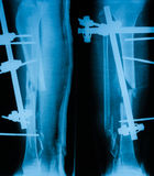 X-ray image of broken leg, AP and lateral view. Stock Photography