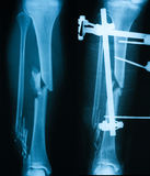 X-ray image of broken leg, AP view. Show before and after treating by plate and screws royalty free stock image