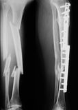 X-ray image of broken leg, lateral view. Royalty Free Stock Images