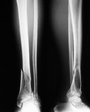 X-ray image of broken leg, Show tibia and fibula fractures. X-ray image of broken leg, AP and lateral view. Show tibia and fibula fractures stock photos