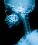 X-ray image of broken mandible ,lateral view Stock Photo